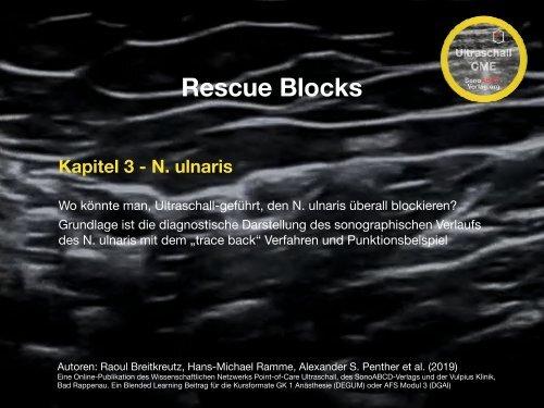 Rescue Blocks_Kapitel_3_Ulnaris trace back und Punktionsbeispiel