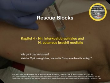 Rescue Block Nn. Interkostobrachiales