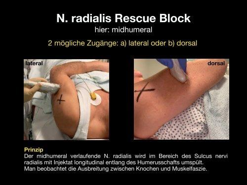Rescue Blocks_Kapitel_1.1_Radialis Block midhumeral