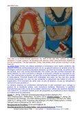 """Pro-Stab-Platten: für Tiefbiss, Deckbiss, mit Schrauben ++ """"Pro-Stab ... - Page 4"""