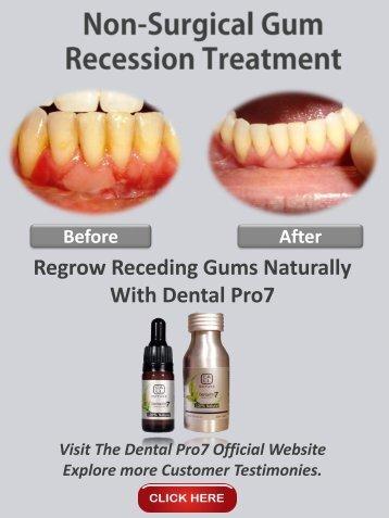 Gum Recession Treatment Options