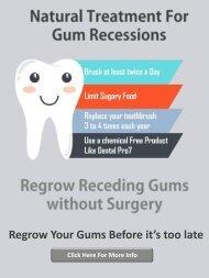 Gum Recession Treatment without Surgery