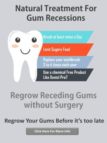 Gum Recession Treatment without Surgery