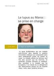 Le lupus  au Maroc :  sa prise en charge