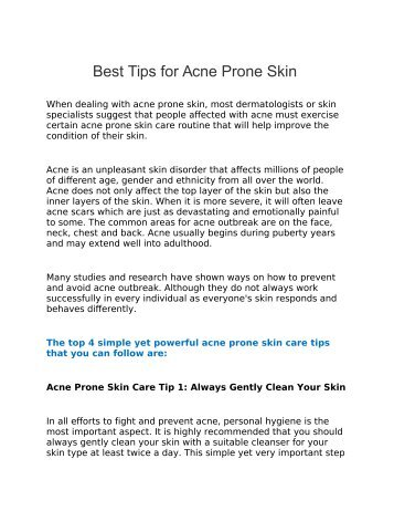 Best Tips for Acne Prone Skin