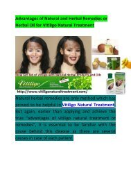 Vitiligo Natural Treatment