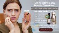 How To Reverse Receding Gums?