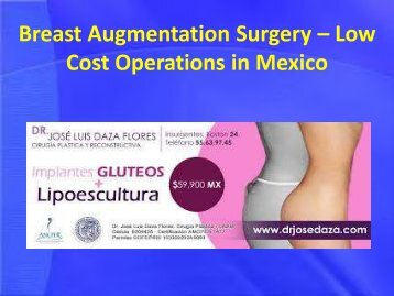 Breast Augmentation Surgery – Low Cost Operations in Mexico