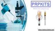 Platelet Rich Plasma(PRP)