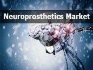Neuroprosthetics Market worth 10.48 Billion USD by 2022