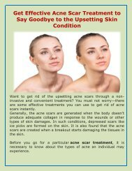Get Acne Scar Treatment  And Say Goodbye To Acne Problems