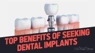 Top Benefits of Seeking Dental Implants