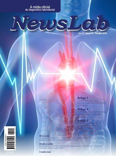 Newslab 152