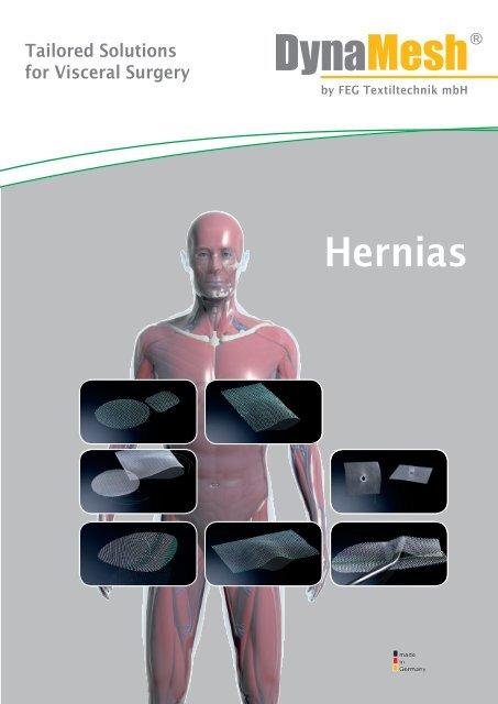 181KAT007E Hernias