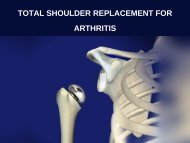 TOTAL SHOULDER REPLACEMENT FOR ARTHRITIS