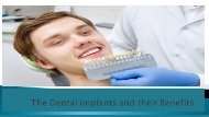 The Dental Implants and their Benefits