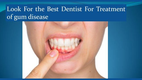 Look For the Best Dentist For Treatment of gum disease