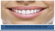 The Dental Implants to Fix your Missing Tooth