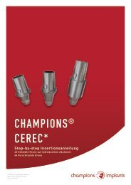 Step-by-Step-Anleitung Champions CEREC
