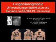 COVID-19 Lungensonographie: Untersuchungsmethoden und Befunde