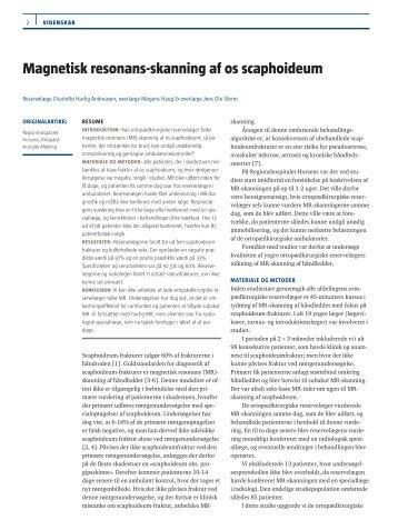 Magnetisk resonans-skanning af os scaphoideum
