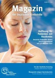 Hoffnung für Patienten mit Hautkrebs - Deutsche Krebshilfe eV