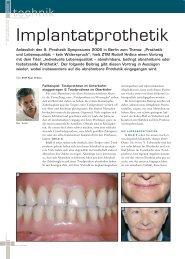 Implantatprothetik - BSI Zahntechnik