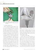 인공관절 치환물의 진화 - KoreaMed Synapse - Page 4