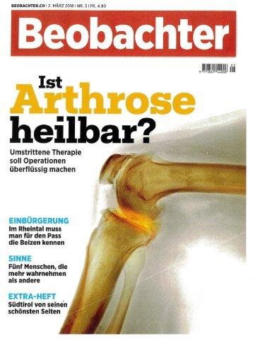 Ist Arthrose heilbar