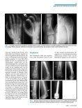 GutartigeTumorenundtumorähnlicheLäsionen desKnochens - Seite 4