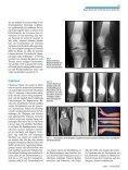 GutartigeTumorenundtumorähnlicheLäsionen desKnochens - Seite 6