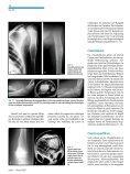 GutartigeTumorenundtumorähnlicheLäsionen desKnochens - Seite 7