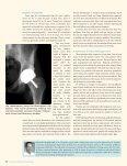 orthopedic magazines - Central Indiana Orthopedics - Page 6