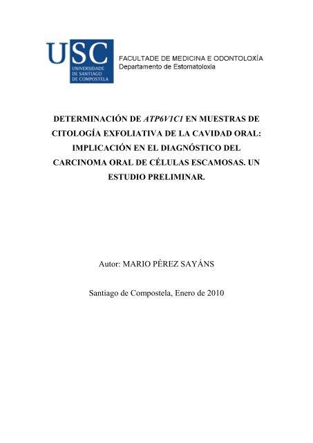 Código icd-10-cm para neoplasia maligna de próstata