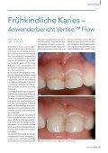 3+1 - Kerr Dental - Seite 7