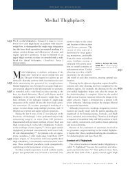 Medial Thighplasty - Hurwitz Center for Plastic Surgery