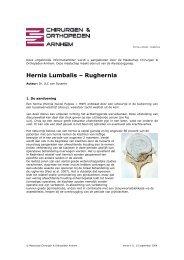 Hernia Lumbalis – Rughernia - Website Chirurgen & Orthopeden ...