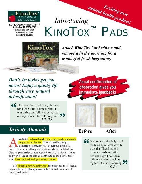 Kinotox