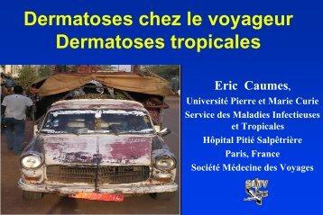 Dermatologie du voyageur - Infectiologie
