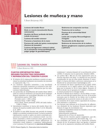 Lesiones de muñeca y mano - Axon
