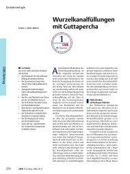Wurzelkanalfüllungen mit Guttapercha
