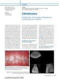 Zahntrauma Klassifikation, Terminologie, Risikofaktoren und ... - Seite 2