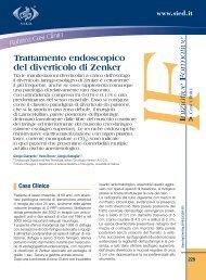Trattamento endoscopico del diverticolo di Zenker - Sied