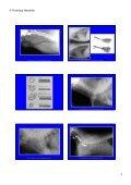 Trachea Lumen Einengung - Seite 2