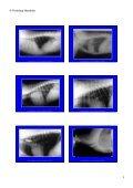 Trachea Lumen Einengung - Seite 3