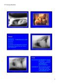 Trachea Lumen Einengung - Seite 5