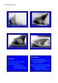 Trachea Lumen Einengung - Seite 7