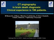 CT angiography in brain death diagnosis