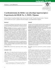 Cardiomiotomía de Heller con abordaje ... - edigraphic.com