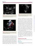 Anomalous origin of the left coronary artery from the pulmonary ... - Page 2